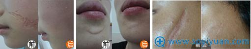 CR-无痛介入祛疤细胞活化术治疗凹陷疤痕