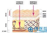 重庆铜雀台中胚层疗法嘭嘭小白针 真人案例见证保湿美白双效果