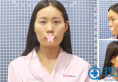 【案例】郑州天后张锐自体脂肪面部填充术后一个月真实恢复图片