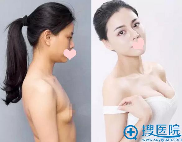 假体隆胸术前术后对比照