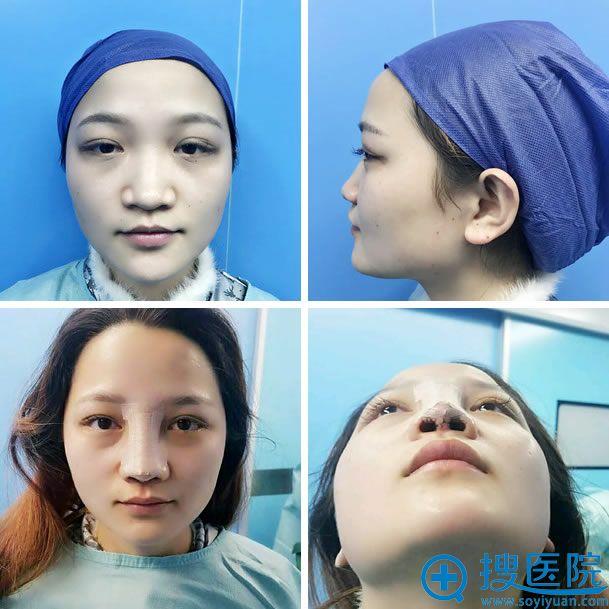 上海455做隆鼻手术前和术后即刻照片