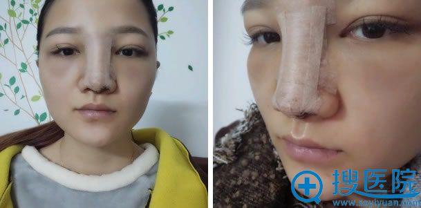 上海455医院做鼻子第2天效果