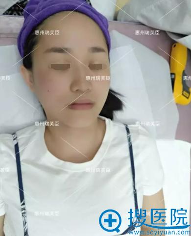 热拉提左侧脸治疗后对比照片