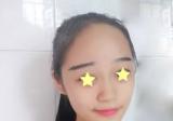 深圳鹏程医院前台MM线雕鼻+艾莉薇玻尿酸丰下巴手术日记