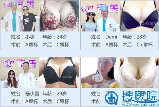 北京京美自体脂肪隆胸案例