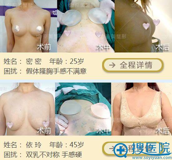 京美刘成胜取出假体脂肪隆胸案例