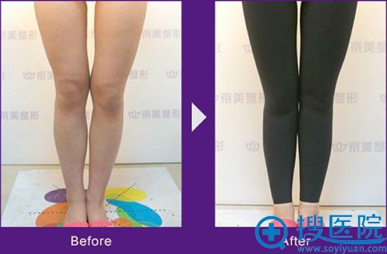 北京京美自体脂肪丰O型腿案例