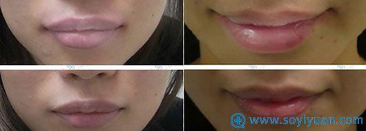 广州市荔湾区人民医院厚唇变薄前后对比照