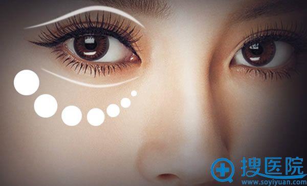 艺星整形眼部手术做的怎么样