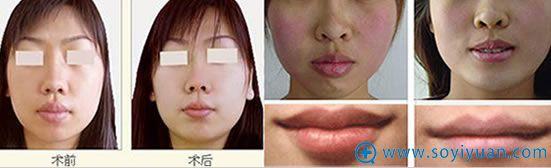 广州韩妃美容医院厚唇变薄前后对比效果