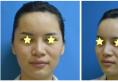 东莞知美黄双闻案例:面部脂肪填充术后3个月恢复日记