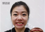 重庆华美时代天使隐形矫正案例 暑期优惠隐形牙齿矫正7599元