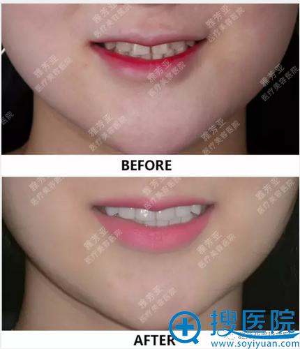 牙齿瓷贴片补门牙缝隙前后效果图