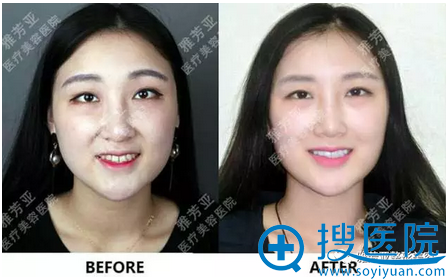 牙贴片补门牙缝隙前后过程图