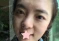 深圳艾妍徐荣阳案例:膨体鼻综合+自体脂肪全面部填充恢复过程