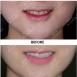 门牙缝隙大怎么办 看石家庄雅芳亚牙齿贴片门牙修补过程效果图