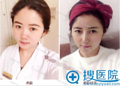 深圳广和尹卫民尹氏全鼻定制术后45天对比图