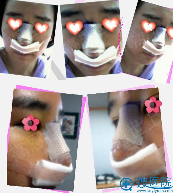 韩国高恩世李院长鼻子手术案例