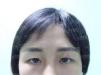 长沙真爱整形医院李瑶线雕隆鼻+面部提升案例 术后秒变气质美女