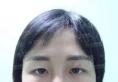 看长沙真爱医院李瑶做的线雕隆鼻和面部埋线提升手术效果好看吗