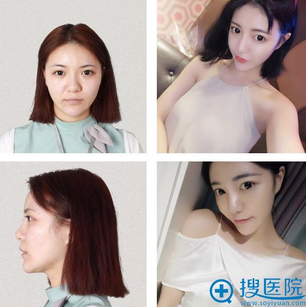 重庆爱思特面部提升抗衰老案例