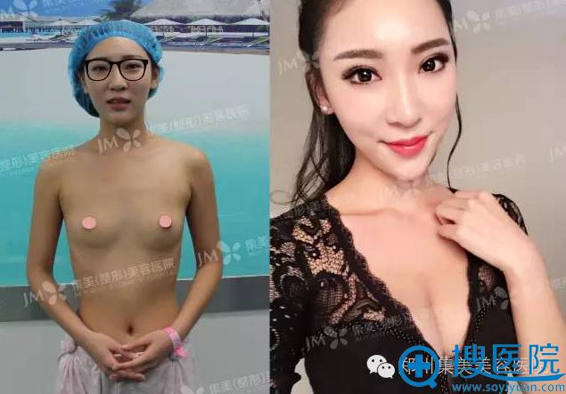 在郑州集美做假体隆胸前后对比图