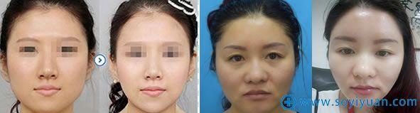 广州军美自体脂肪面部填充案例图