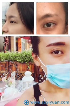上海古北悦丽医疗美容医院半永久纹眉案例