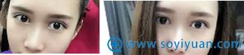 深圳妍熙陈桂飞硅胶鼻综合+耳软骨垫鼻尖+鼻头鼻翼缩小案例