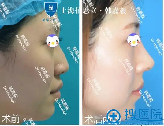 上海百达丽韩嘉毅肋软骨隆鼻术后2周侧面图