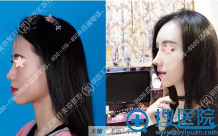 大连明医汇韩式肋骨综合隆鼻术后侧面对比照