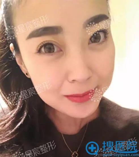 在重庆星宸美容医院做线雕术前照