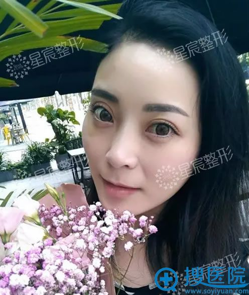 重庆星宸面部线雕术后11天案例图