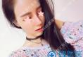大连明医汇韩式肋骨综合隆鼻+面部脂肪填充手术让她拍照美成仙