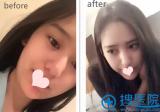 【经历】找上海薇琳孙荣做面部吸脂瘦脸1个月恢复全过程效果图