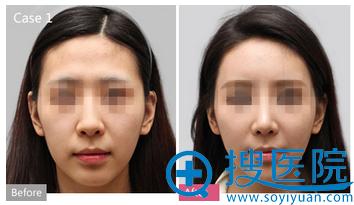 上海华美姜胜勋自体脂肪移植案例