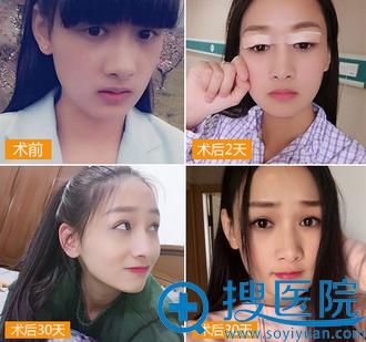 上海华美佀同帅双眼皮案例