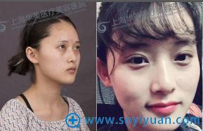 上海华美张朋双眼皮案例