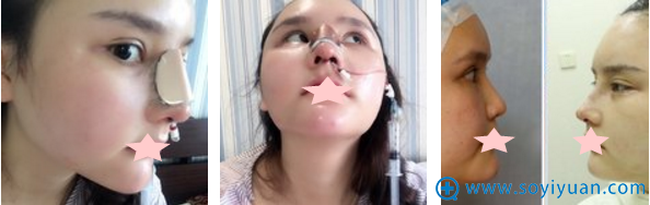 大连科美杨明半肋骨隆鼻修复术后即刻效果