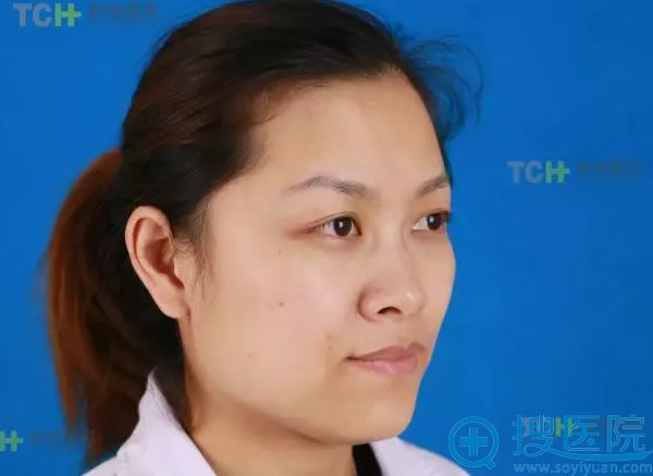 在重庆时光整形医院做鼻子术前照