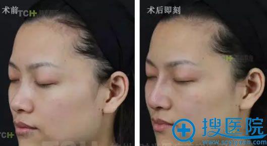 玻尿酸隆鼻术后即刻效果对比照