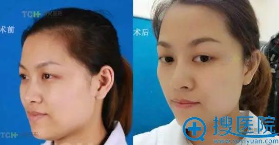 玻尿酸注射隆鼻术后第2天前后对比照