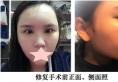 大连科美杨明洁做鼻子好吗?半肋骨隆鼻修复手术案例为你揭秘