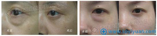 重庆超雅超声波祛眼袋案例