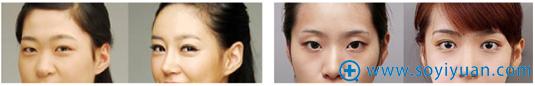 重庆超雅超声波双眼皮案例