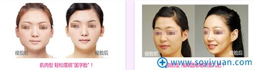 重庆超雅超声波瘦脸案例
