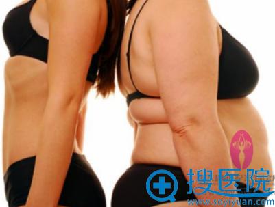 重庆超雅超声波减肥案例
