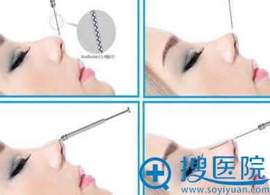 线雕隆鼻操作过程