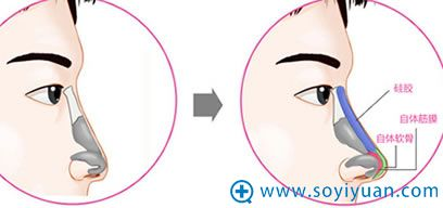 假体隆鼻手术过程图示