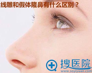 线雕隆鼻和假体隆鼻有什么区别